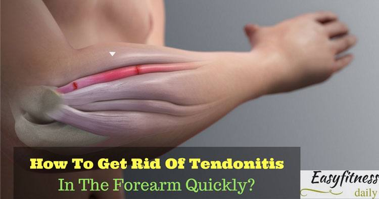 How To Get Rid Of Tendonitis In The Forearm Quickly?