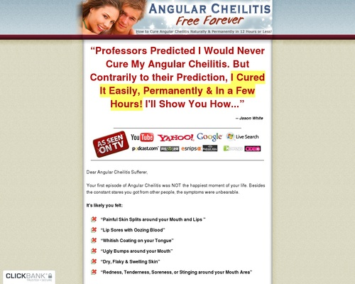 Angular Cheilitis Free Forever - How to Cure Angular Cheilitis Naturally & Permanently in 12 Hours or Less 1