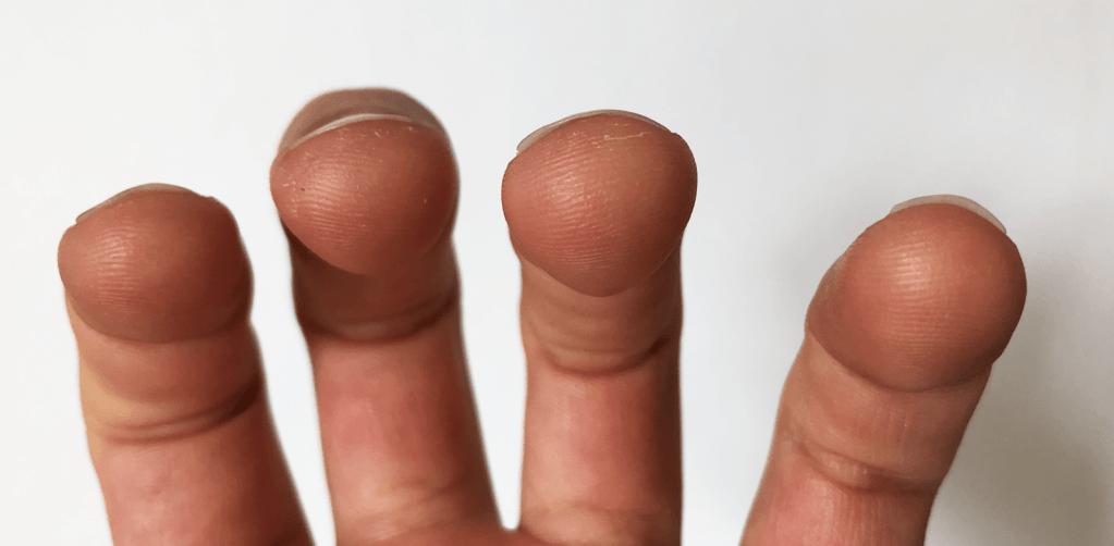 sore fingers ukulele callus