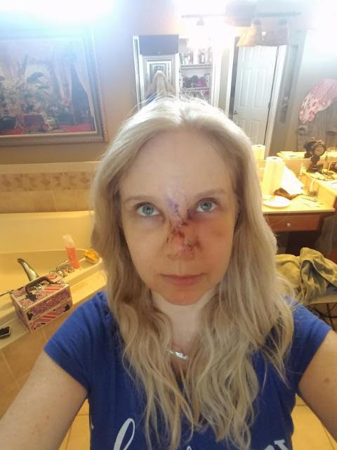 What Happened to my Face    Skin Cancer & Mohs Surgery