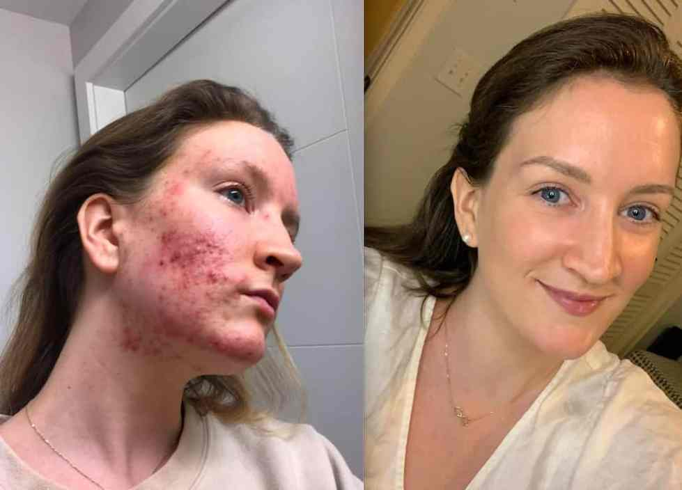 How Parasite Cleansing Transformed My Skin and Healed My Acne | Eat