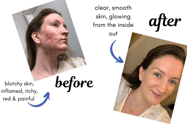acne before and after parasite cleanse