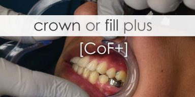Crown Or Fill Plus
