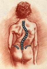 Figure 2 In a right thoracic scoliosis, the major scoliosis is concentrated in the thoracic (mid back) region and the spine curves to the right.