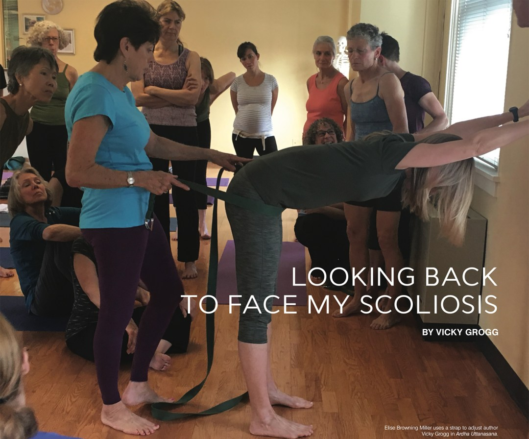 looking back to face my scoliosis
