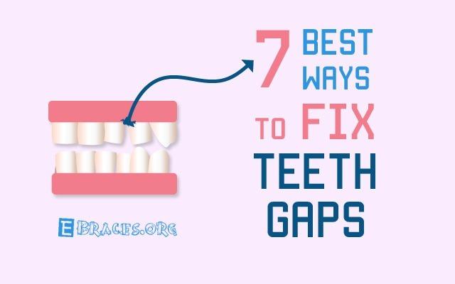 gap in teeth
