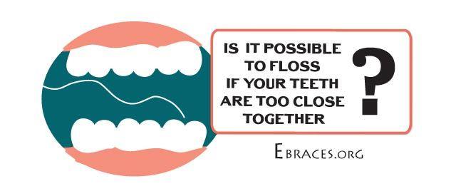 flossing close teeth