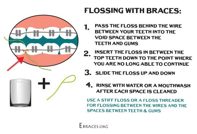 how to floss with braces step by step