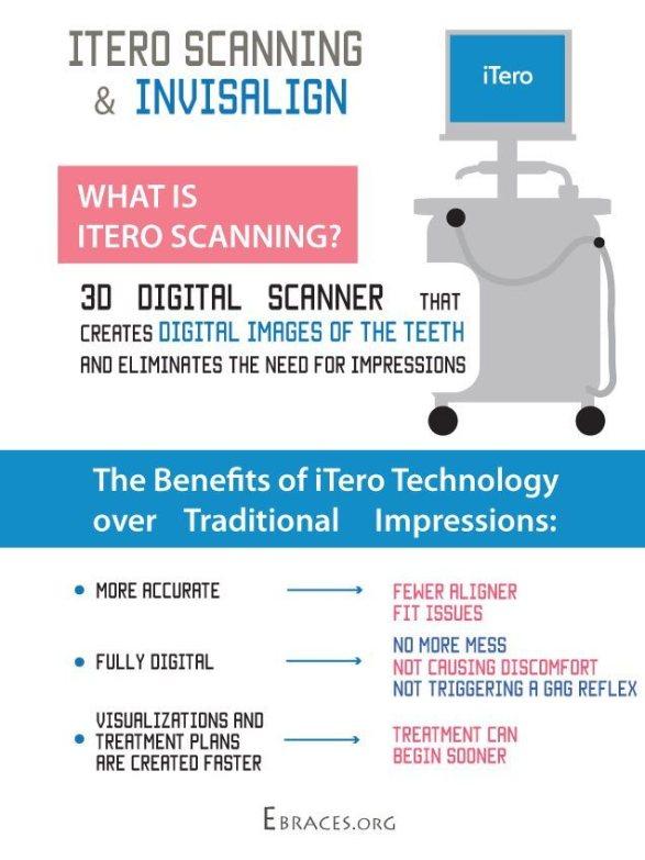 itero for invisalign infographic