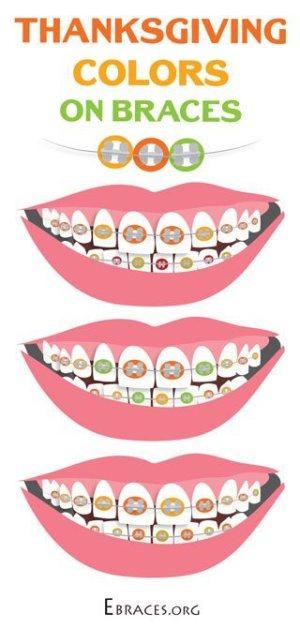 braces color combinations