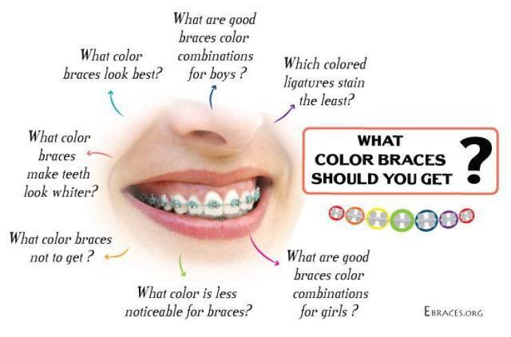 what color braces should you get