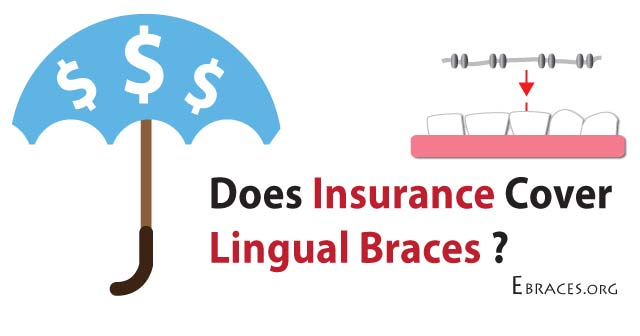 lingual braces insurance
