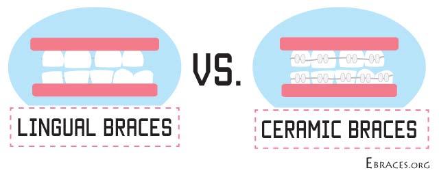 lingual braces vs ceramic braces