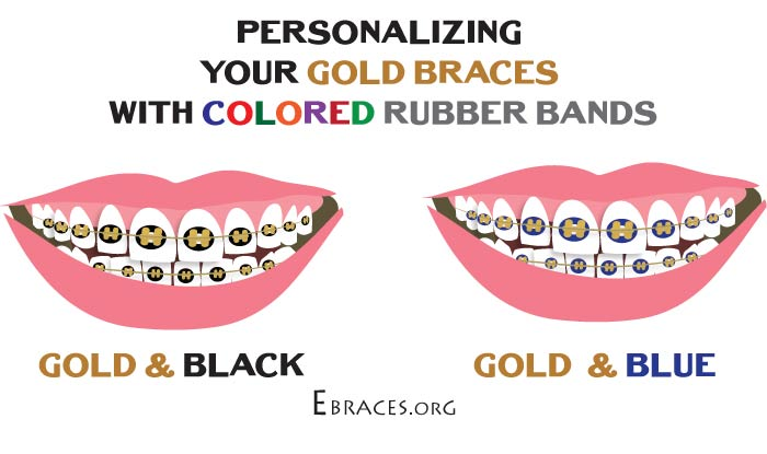 black and gold braces