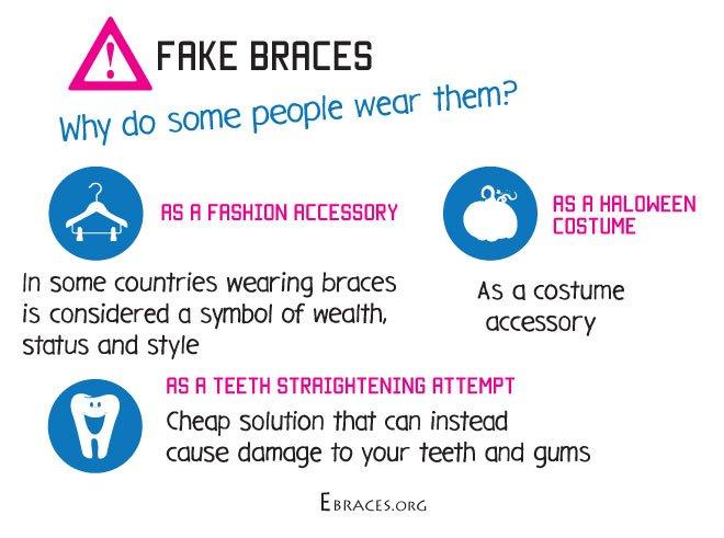 Do You Really Need Fake Braces