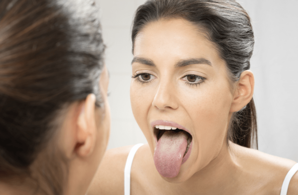 5 Early Symptoms Of Tongue Cancer