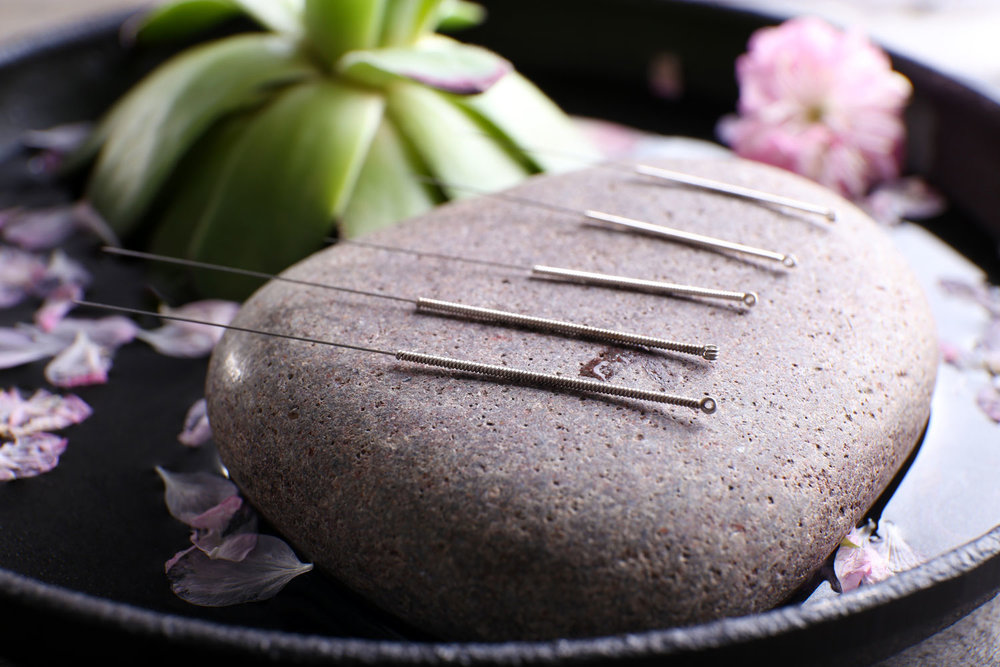 5 Amazing Acupuncture Benefits That You Never Knew - ebuddynews