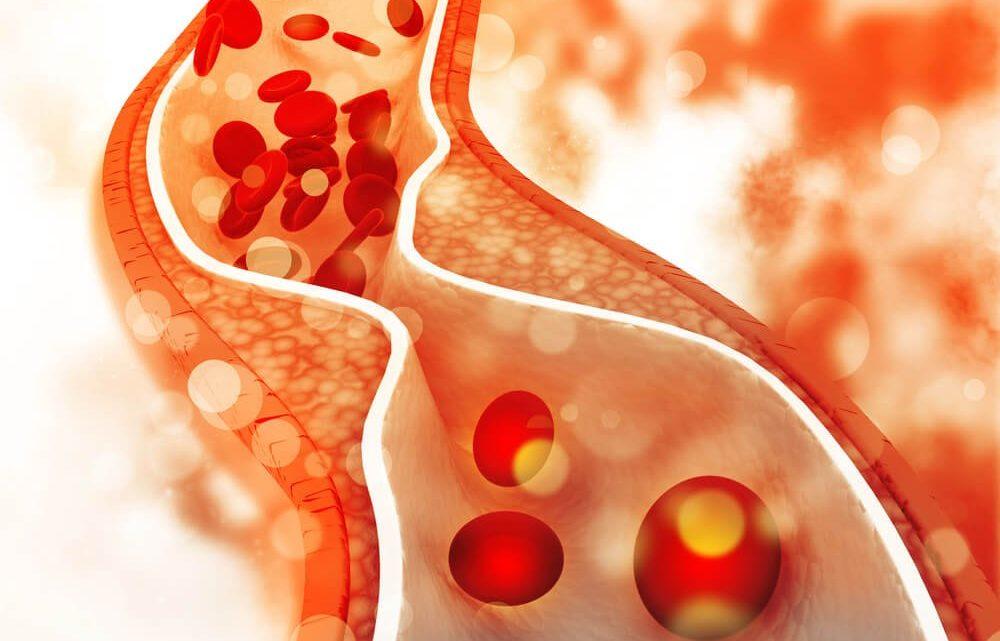 Carob Flour For Blood Cholesterol Reduction - eBudddynews