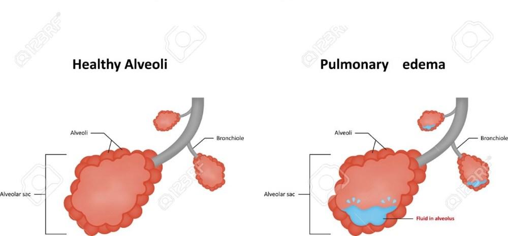 Pulmonary Edema Symptoms - eBuddy News