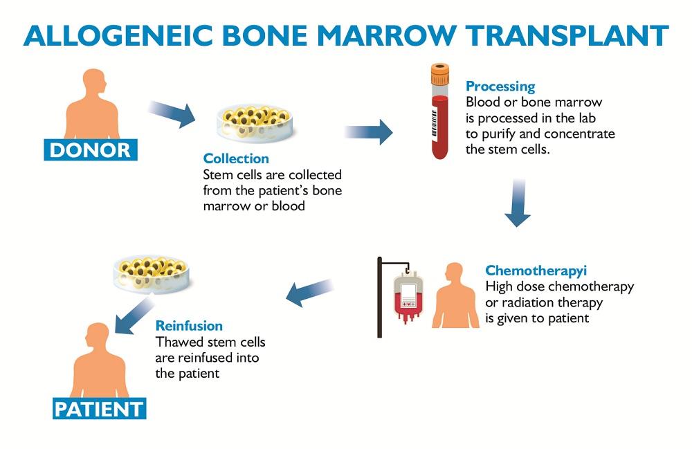 Bone Marrow Donation Process - eBuddy News