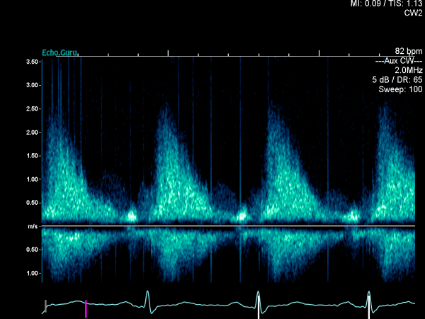 Non-guided CW Doppler from RSE. There is a signal above the baseline which looks like the correct signal, but note the absence of valve clicks.
