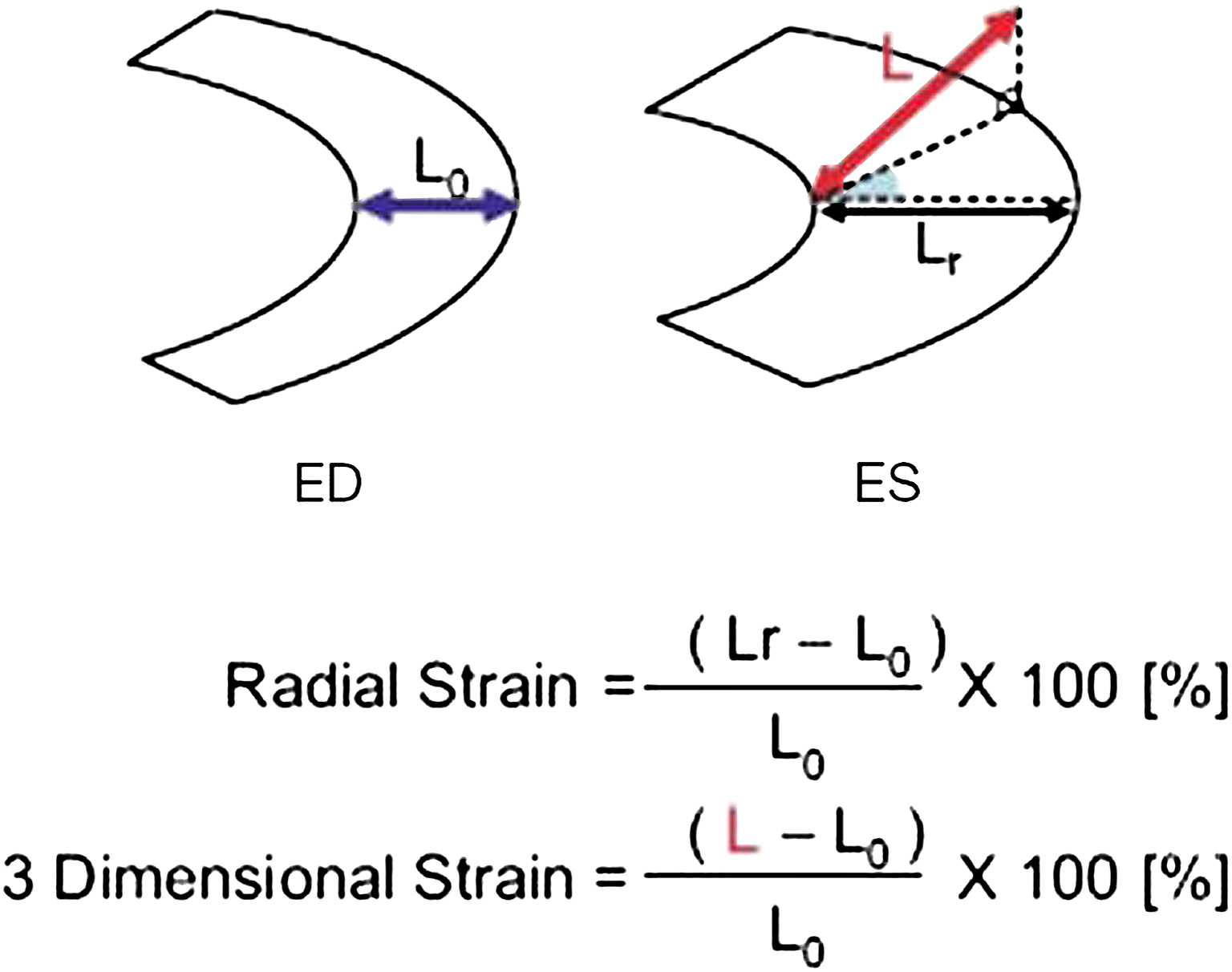 Three-Dimensional-Wall Motion Tracking