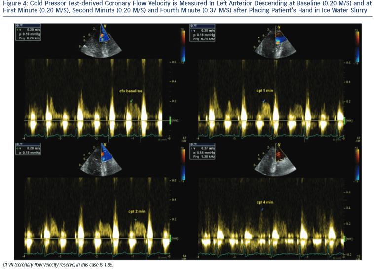 figure4-Cold-Pressor-Test-derived-Coronary-Flow-Velocity
