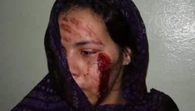 صورة العثور على فتاة تعرضت للضرب الشديد مغمى عليها في أحد الشوارع بتفرغ زينه