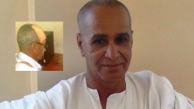 """صورة إصابة رئيس مجموعة """" أتلانتيك ميديا"""" الزميل محمدسالم ولد الهيبة بعد الإعتداء عليه في منزله"""