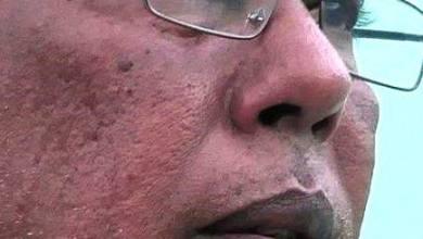 صورة ولد سيد ميله  : نصيب موريتانيا مالكة الثروة من  شركة النحاس والمعادن( 12.5%) فقط