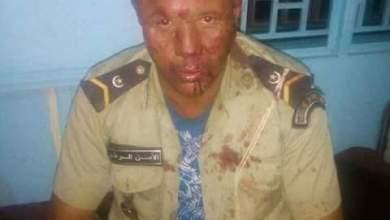 صورة إصابة شرطيين اصابات بليغة  في اعتداء على مفوضية الشرطة بلعيون(صور)