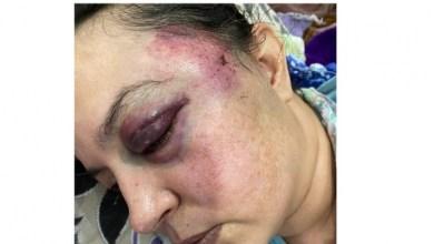صورة استنكار شديد للاعتداء المغربي على المناضلات الصحراويات (صورة)