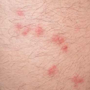 Close up view of bed bug bites on skin