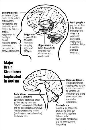10 Toxic Common Chemicals Suspected of Causing Autism