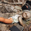 US Babies sick with congenital hypothyroidism from Fukushima radiation
