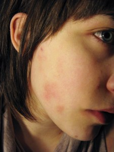 food sensitivity eczema