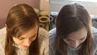 """""""no poo"""": Cómo lavar el pelo sin Champú"""