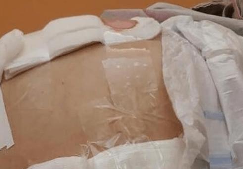 «Qu'en est-il de la chirurgie stérile?»: Une femme en état de choc après que des médecins lui ont appliqué du ruban adhésif