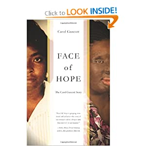Face of Hope