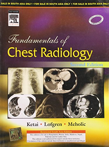Fundamentals of Chest Radiology