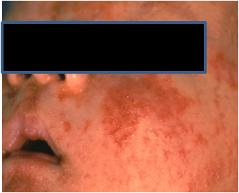 Infant with face eczema rash on cheeks