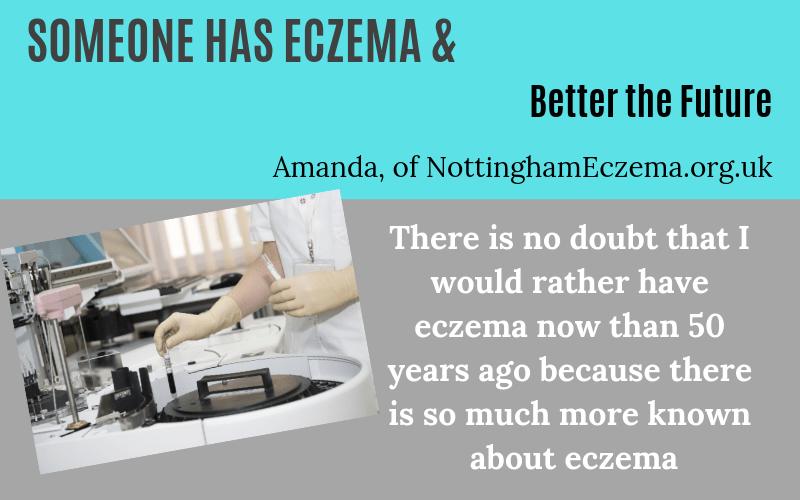 Someone has eczema Amanda of Nottingham Story on EczemaBlues