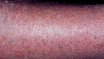 Elderly Skin Conditions series – Elderly Skin, How does Skin