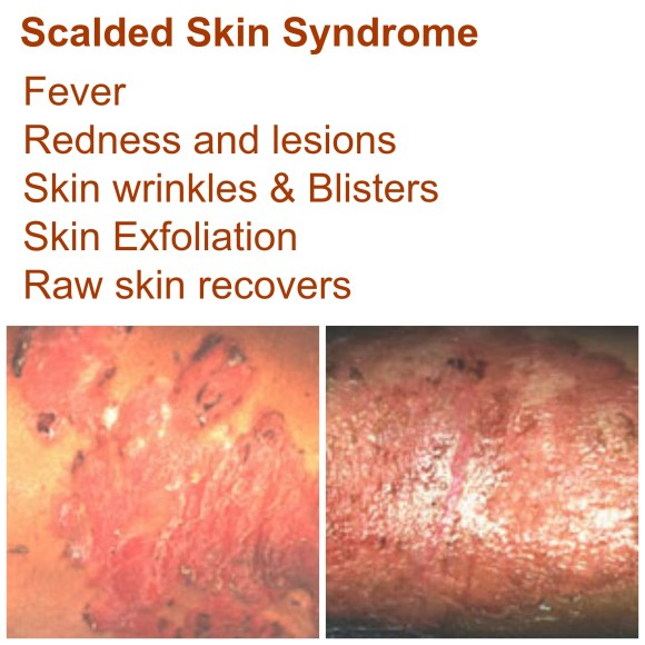 Staphylococcal Scalded Skin Syndrome