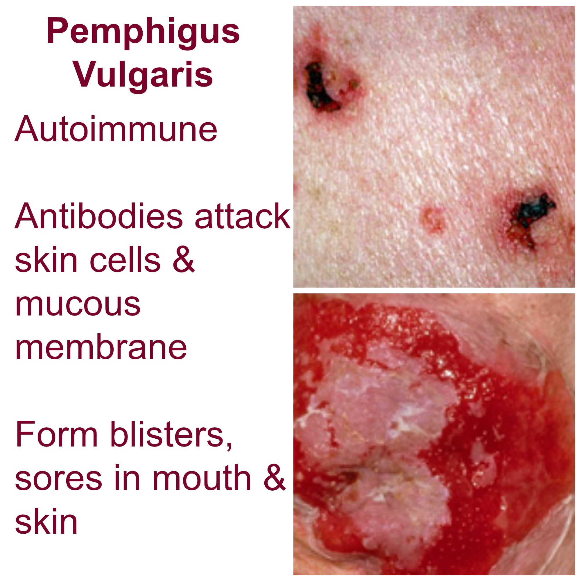 pemphigus vulgaris Pemphigus vulgaris (icd-10 code l 100) are you confident of the diagnosis what you should be alert for in the history determine the scope of mucosal and cutaneous disease: ask whether.