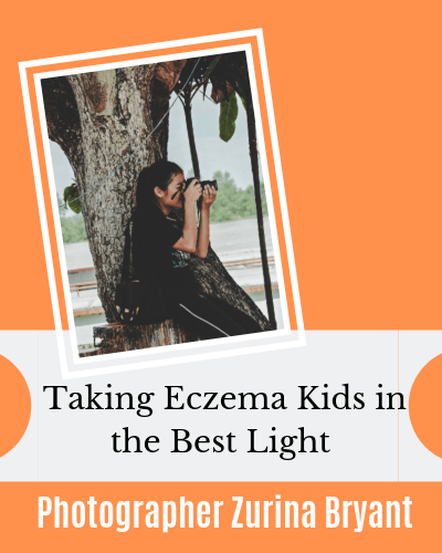 Photography for Eczema Kids with Photographer Zurina Bryant