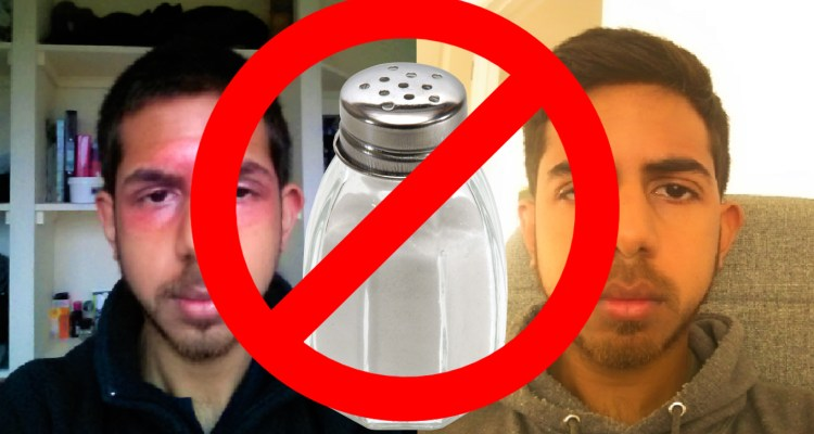 salt for eczema