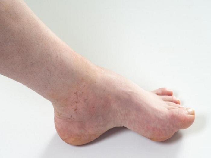stasis dermatitis symptoms