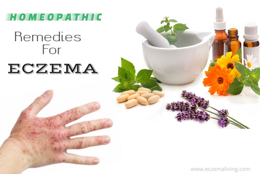 Homeopathic Remedies For Eczema