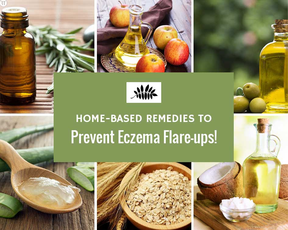 Home Remedies to Prevent Eczema Flare-ups